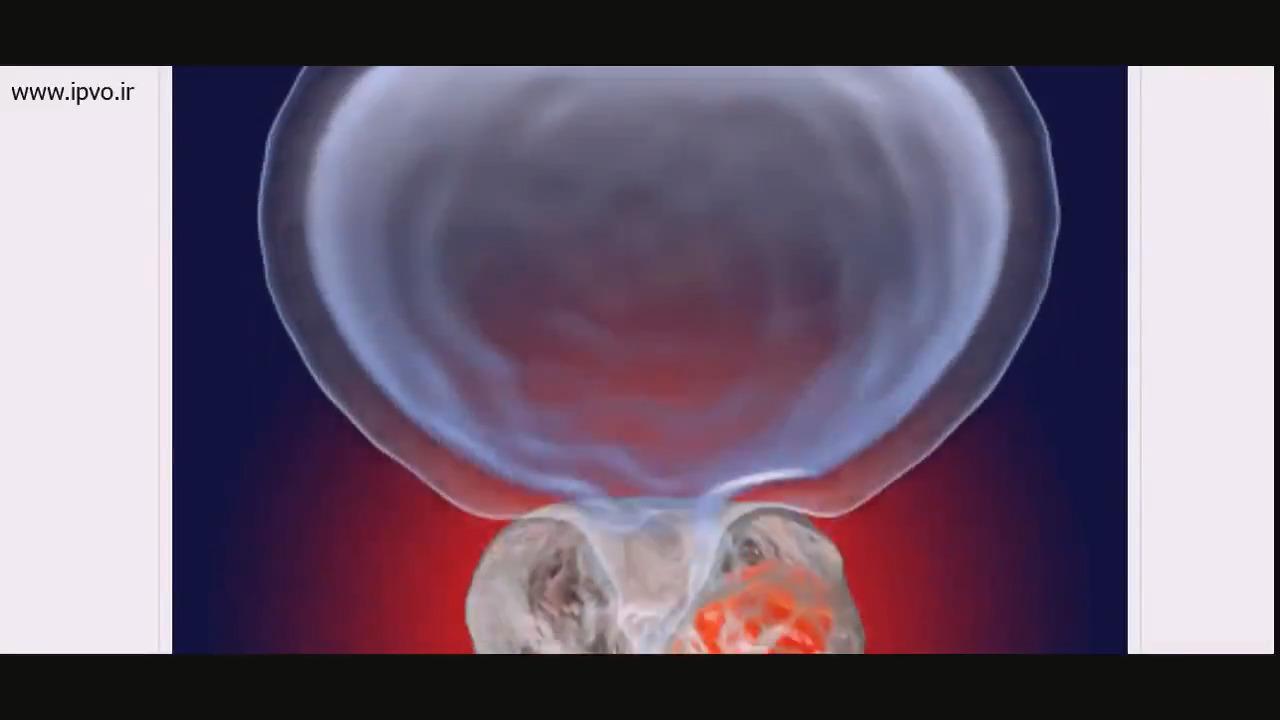 چگونه خطر ابتلا به سرطان پروستات را کاهش دهیم